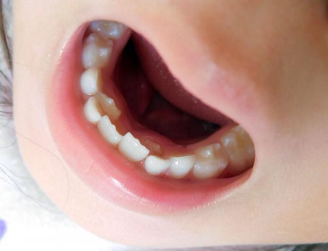 子供の口内炎 甘く見てない 見過ごすと大変な事に 種類や治療法