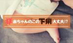 【完全ガイド】赤ちゃんのこの下痢大丈夫?!徹底的にお答えします!
